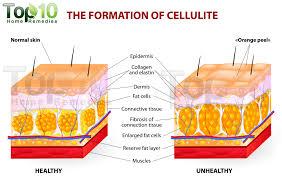 ihatecellulite2
